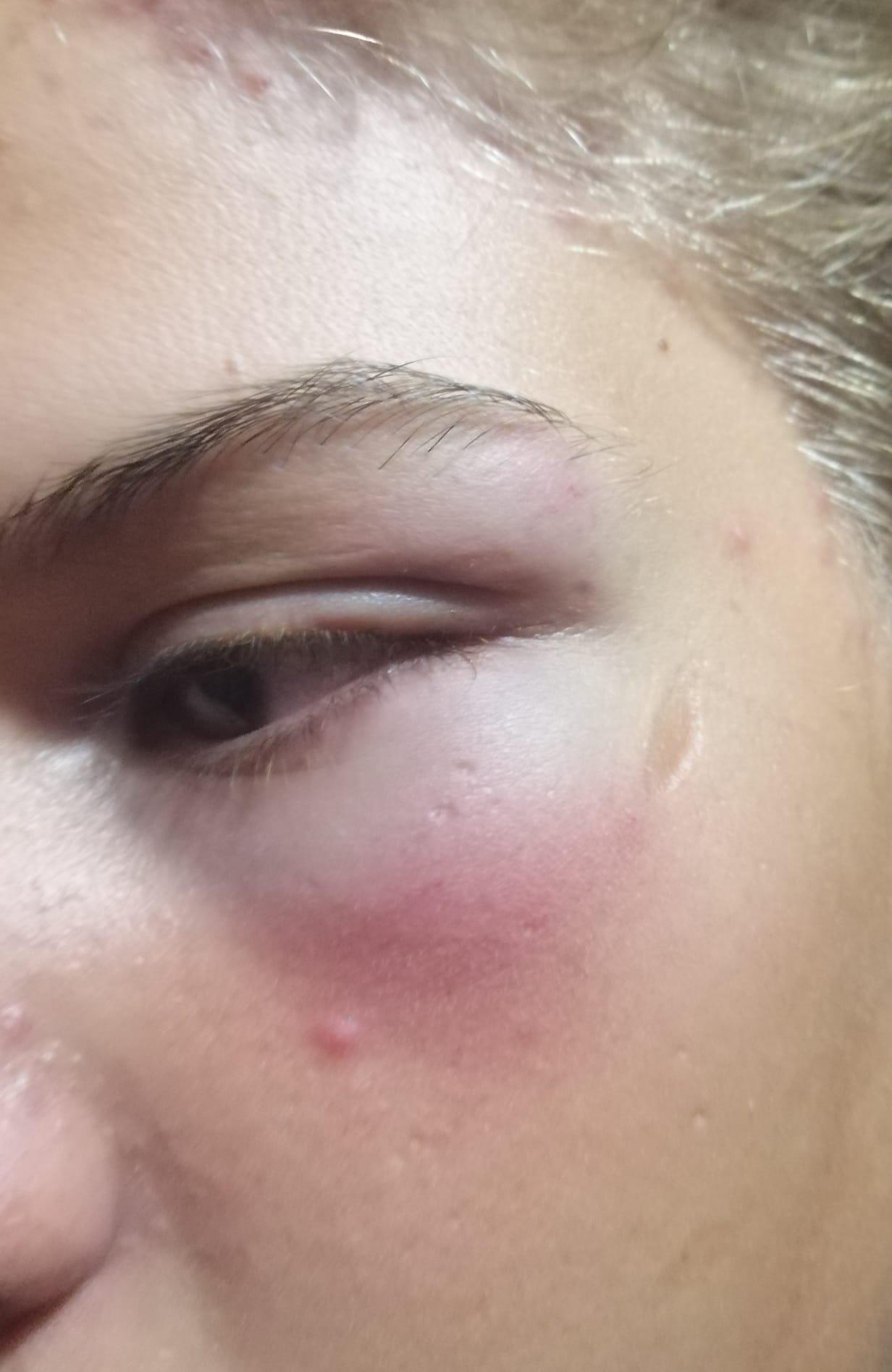 В Скадовске аферист напал на ребенка: родители ошарашили причиной