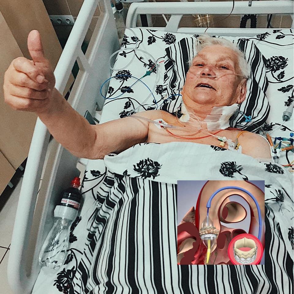 Во Львове провели уникальную операцию на сердце: без единого разреза