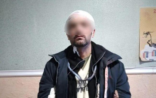 """Поджигатель """"Эпицентра"""" в Первомайске раскрыл причины своего поступка"""
