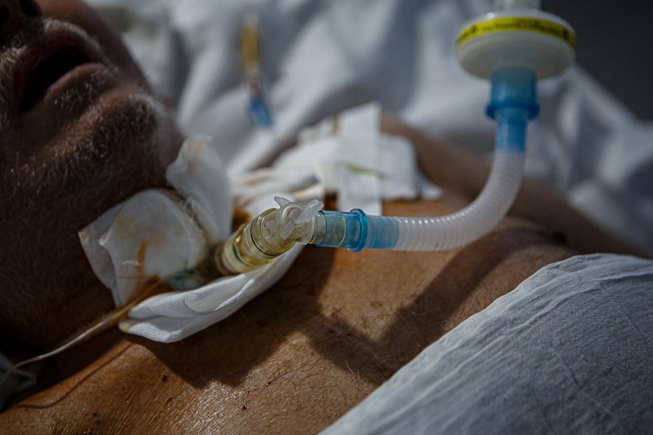 Фотограф показав кадри з COVID-відділення лікарні в Ужгороді: люди, одумайтеся