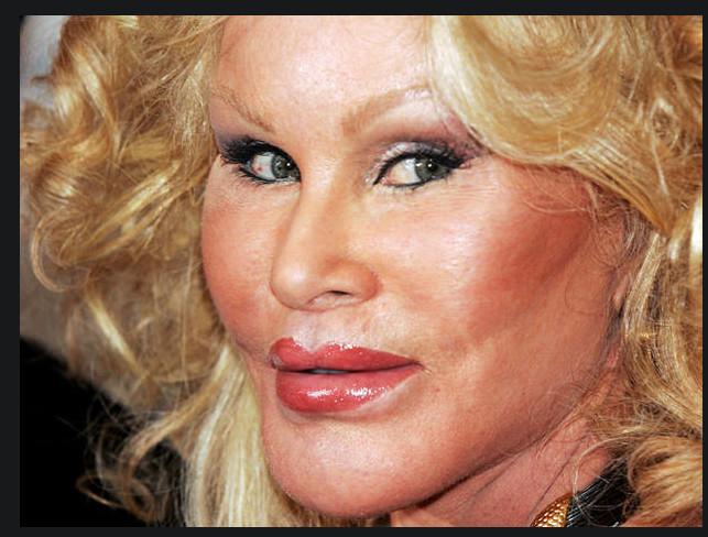 Жертвы пластики: 10 голливудских звезд, для которых пластические операции обернулись катастрофой (фото)