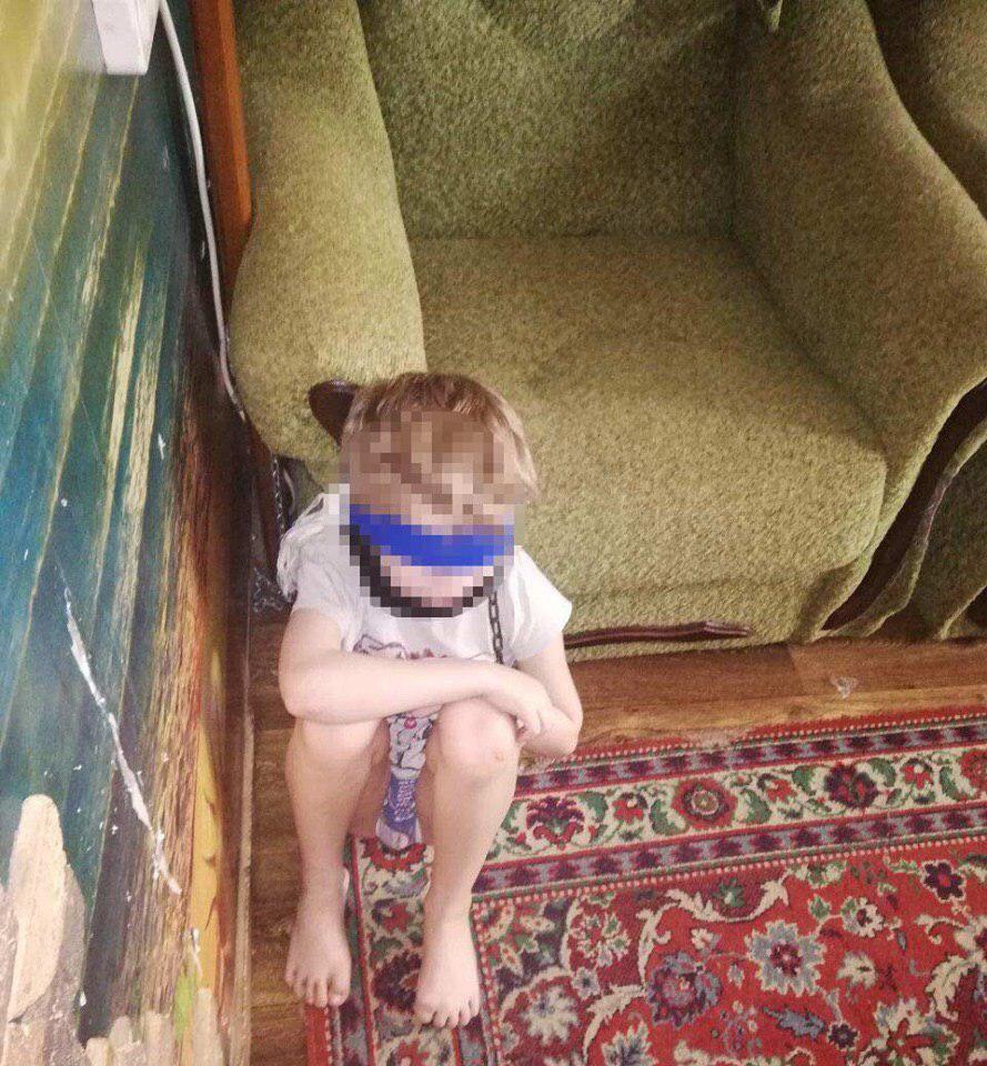 В Днепре 8-летнего мальчика дома держали на цепи с завязанными глазами (фото)