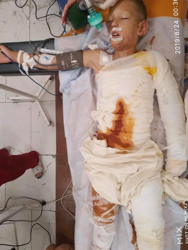 Нужна помощь: в Днепре дети облили бензином и подожгли мальчика