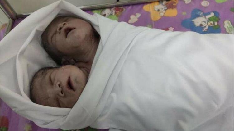В Мьянме родился ребенок с двумя головами: малыш абсолютно здоров (фото)