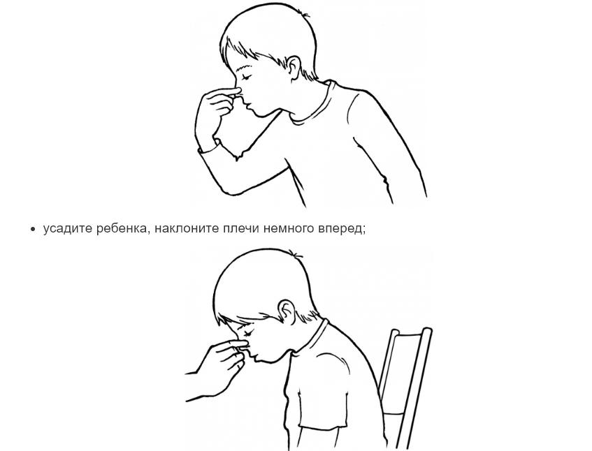 Комаровський розповів, як надати першу допомогу при носових кровотечах