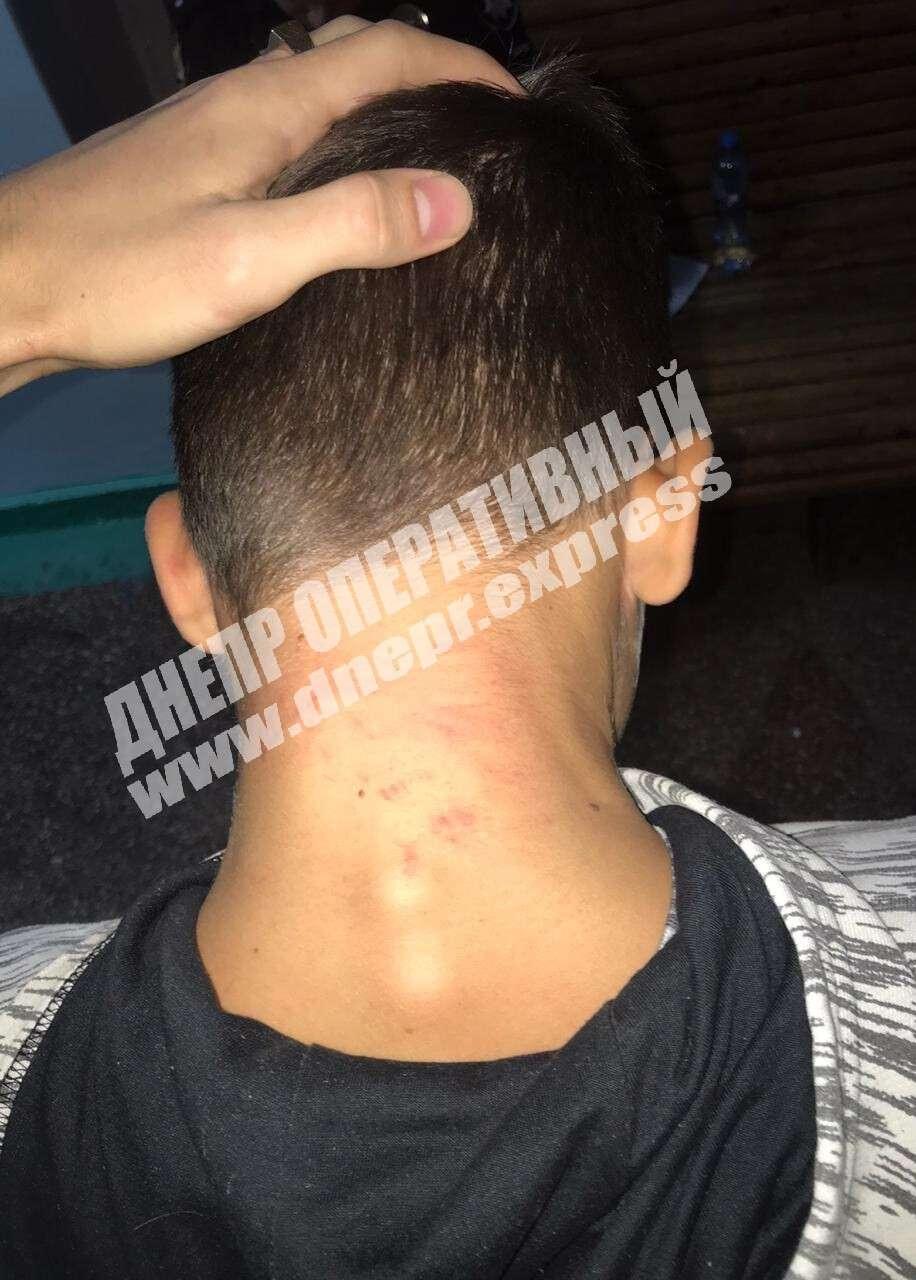 Душили і били по голові: під Дніпром роми напали на 12-річну дитину