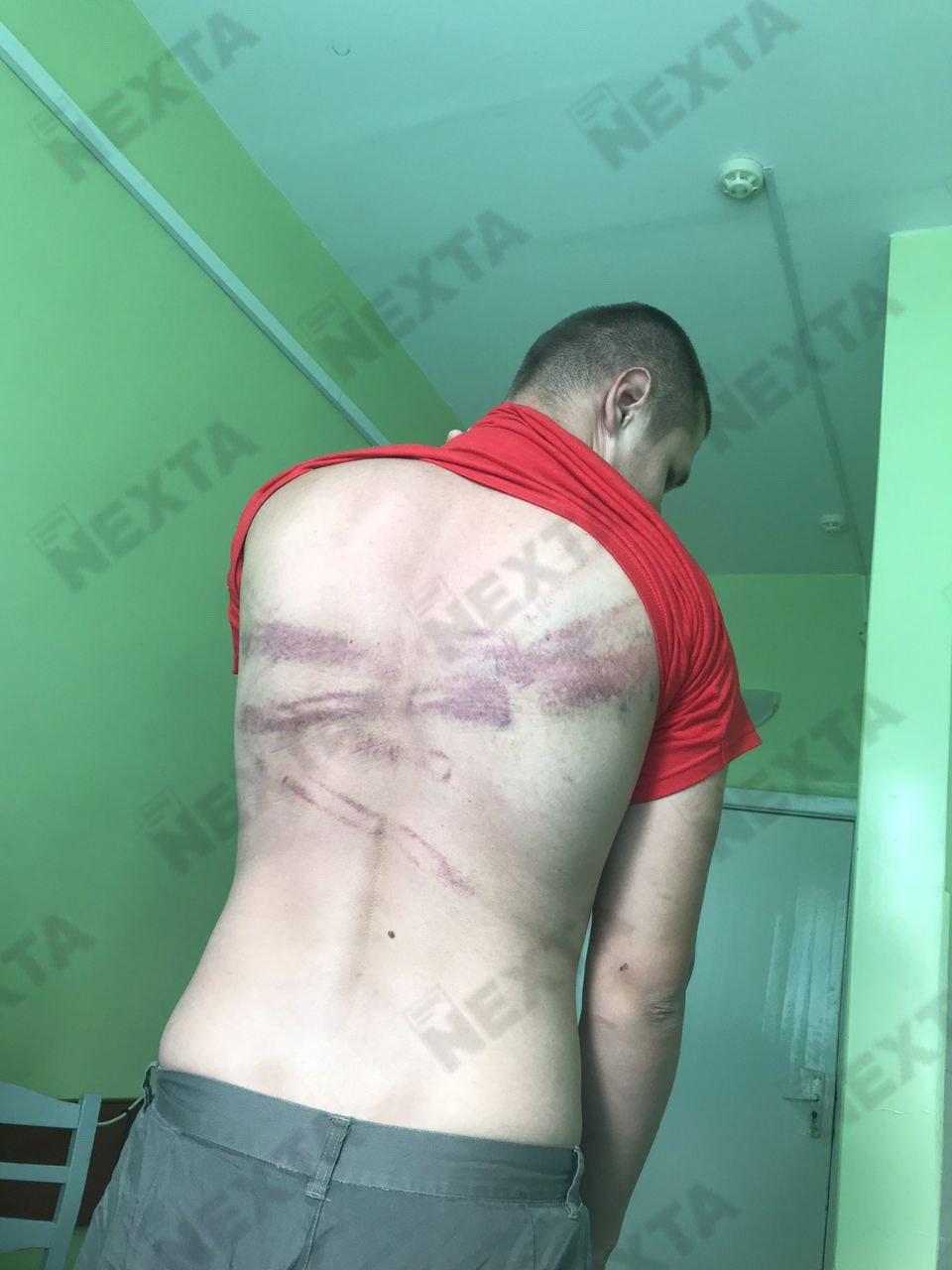 В сети показали ужасающие снимки избитых людей в Беларуси: фото 18+