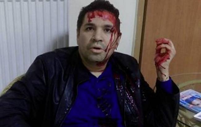 Фото: у Харкові побили Анатолія Родзинського