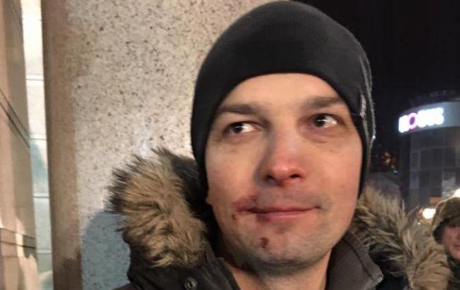 Фото: Егор Соболев с избитым лицом