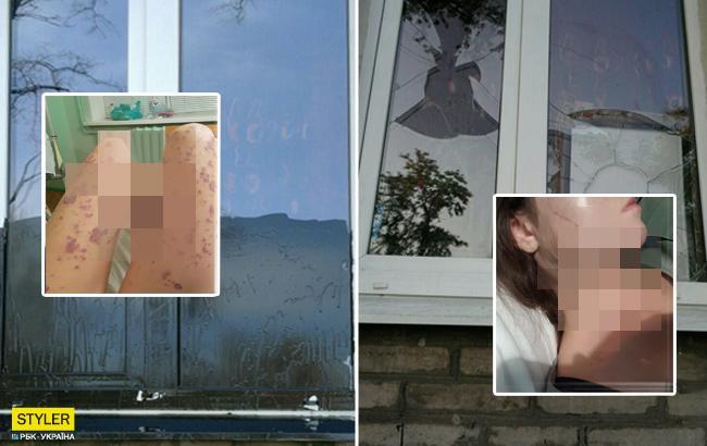 У Запоріжжі молоду жінку облили кислотою: всі подробиці інциденту