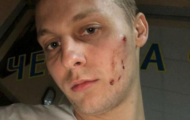 У Києві побили сина Шуфрича