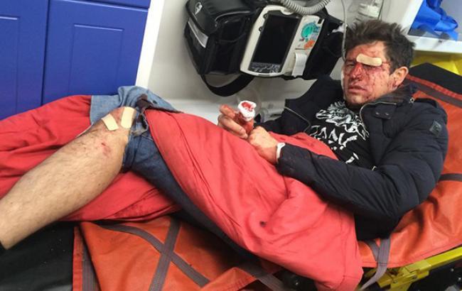 Шоумен Андрій Джеджула госпіталізована після нападу невідомих у Києві