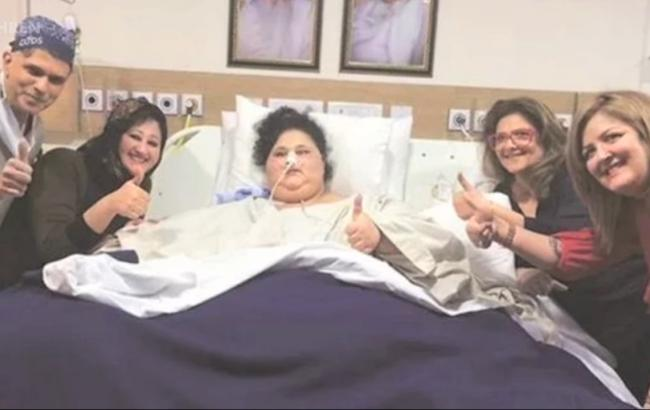 500-килограммовой египтянке удалось избавиться от 242 кг