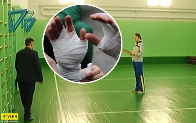 Урок физкультуры закончился для ученицы переломом рук