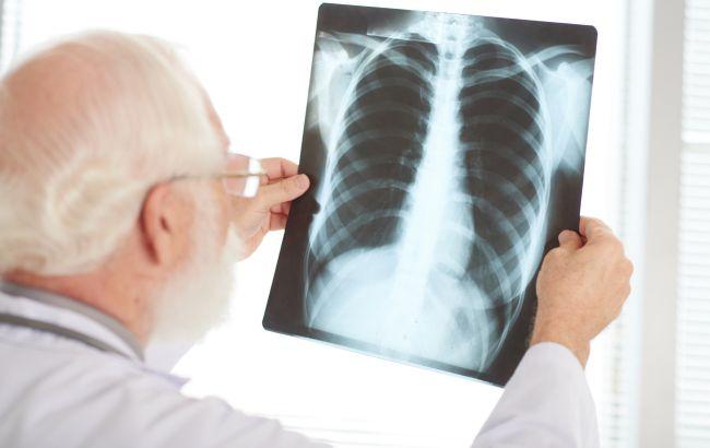 Назван новый признак начинающейся пневмонии при COVID-19: как определить