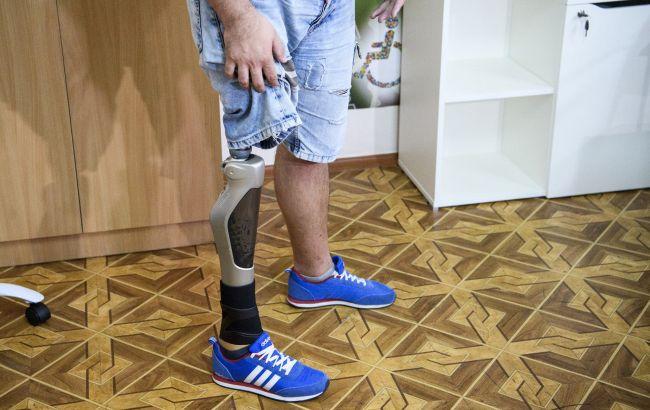 Виробники протезів для АТОвців працюють без з/п майже рік: назріває скандал