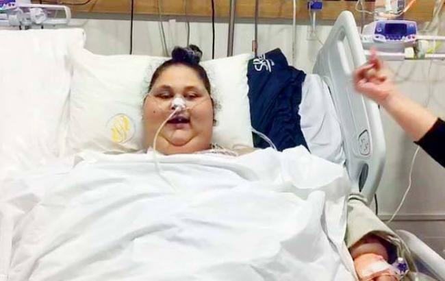 500-килограммовая египтянка поразила кардинальным похудением
