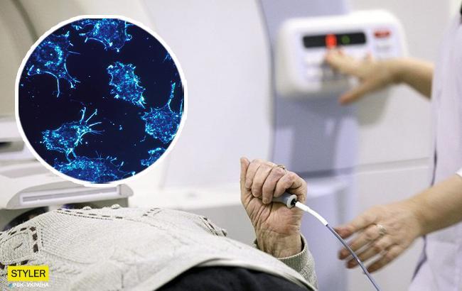 Стало известно, как определить рак на ранних стадиях