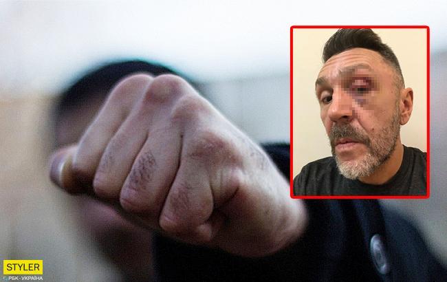 """""""С помощью насилия вернулся в лоно"""": Сергей Шнуров рассказал, за что ему подбили глаз"""