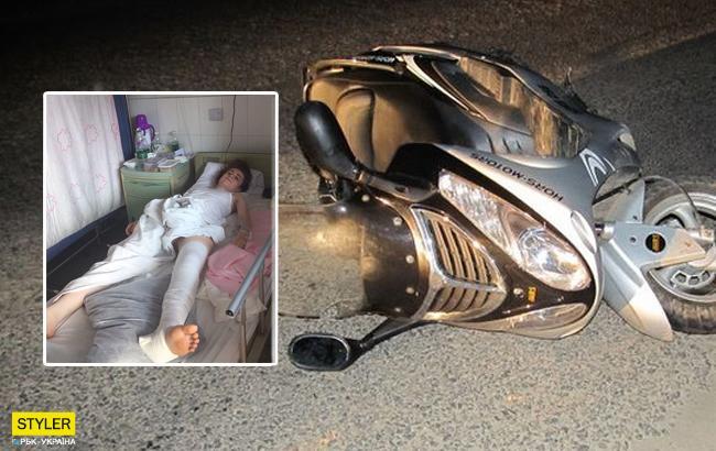 Українська модель розбилася на скутері, отримавши перелом ноги та хребта