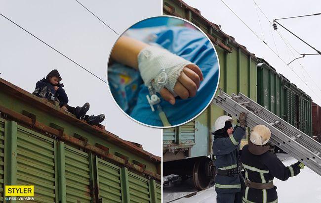 У Кропивницькому хлопець заліз на поїзд і отримав удар струмом: стан потерпілого