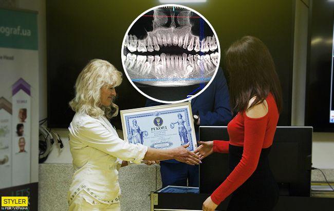 Жінка-акула: найзубастіша українка вразила мережу (фото)