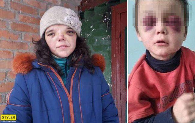 Жахливе побиття дитини під Вінницею: горе-мачуха таємничо зникла