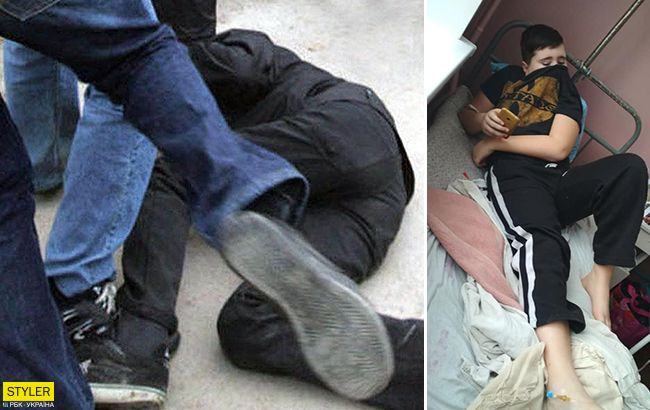 Звери, а не дети: под Харьковом школьника жестоко избили старшеклассники