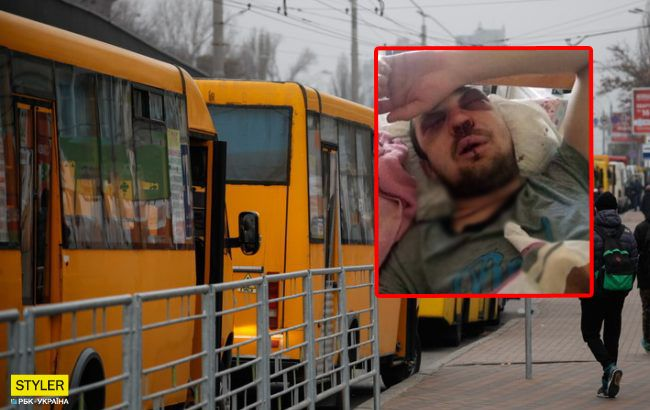 Попросив дати здачу: під Києвом маршрутник по-звірячому побив пасажира