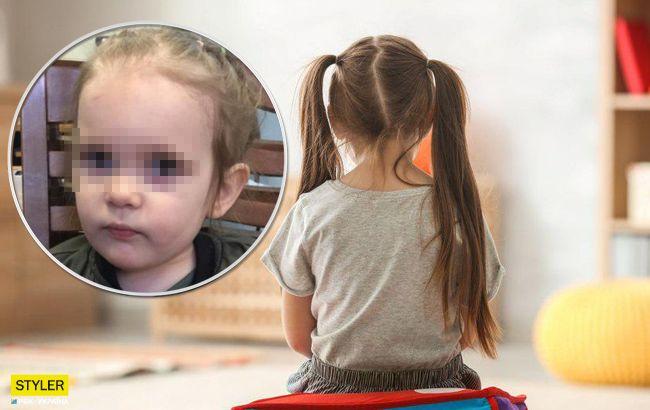 Заговорила українською: що відомо про знайдену в Москві дівчинку