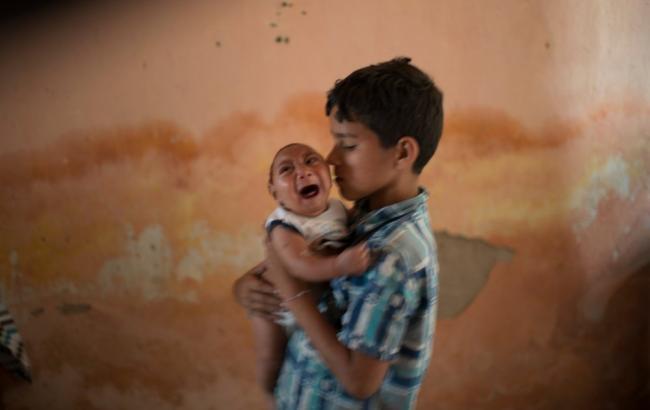 Фото: мальчик держит младенца, рожденного с микроцефалией