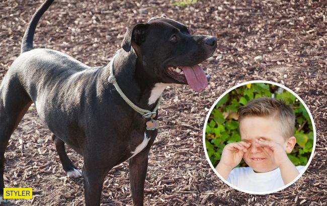 """У Херсоні бійцівський пес тероризує людей: господиня командує собаці """"фас"""""""