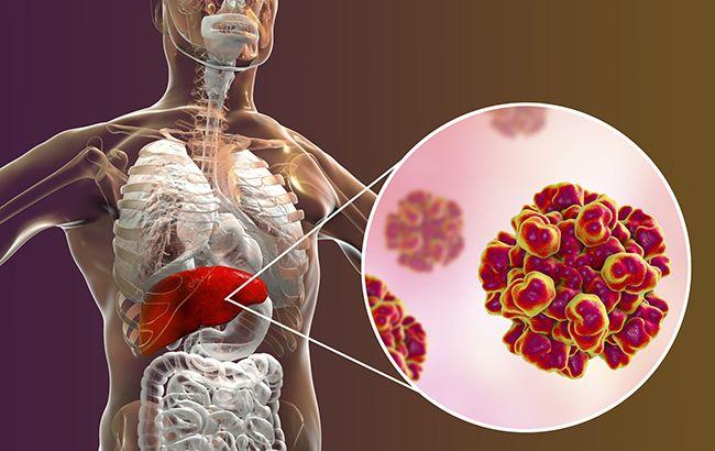 Вспышка гепатита А в Украине: как не стать жертвой опасного вируса