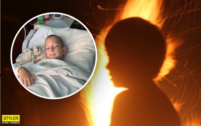 Мальчика облили бензином и подожгли: новые детали жуткого ЧП в Днепре