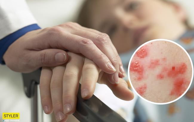 В Харькове у первоклассника обнаружили опасную инфекцию