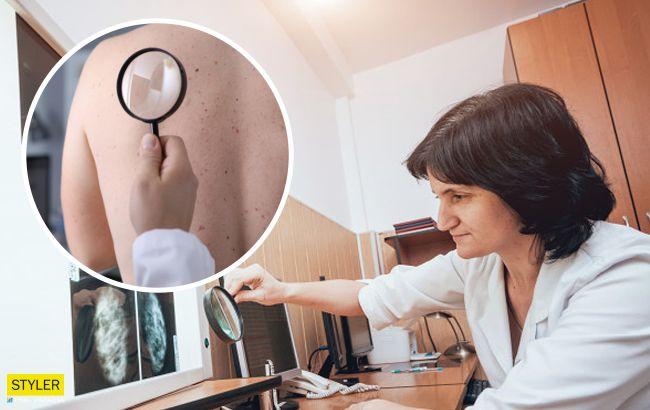 Онкологи назвали головні ознаки раку шкіри