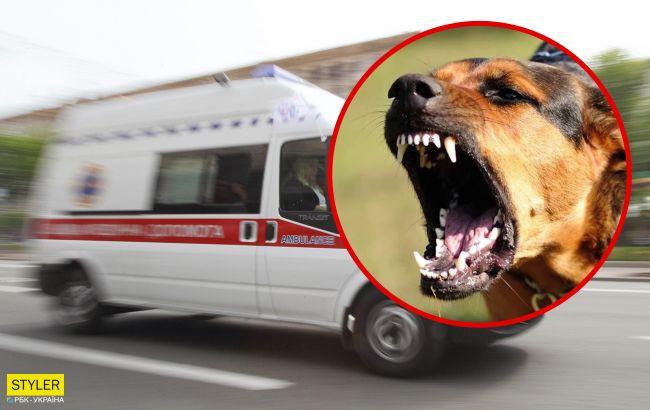 В Ровно собака напала на маленькую девочку и вцепилась в лицо: малышку прооперировали