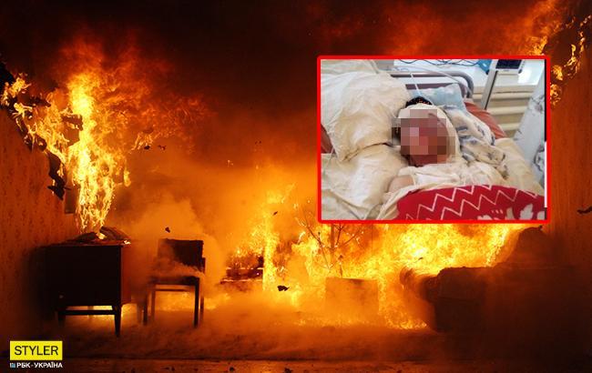 Заливав бензин навіть у рот: п'яний чоловік підпалив 22-річну дружину