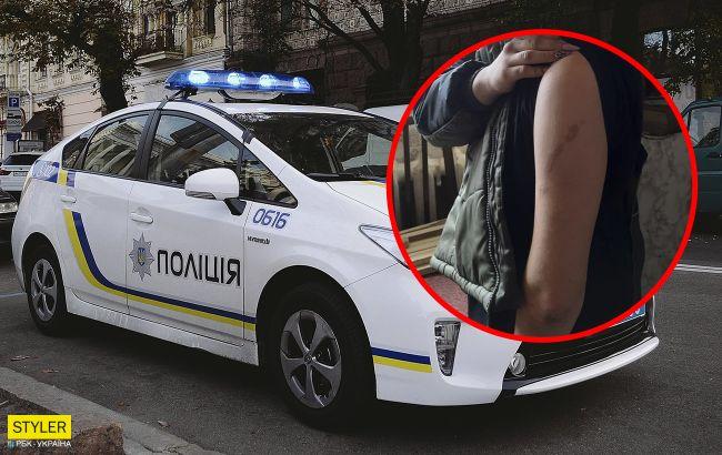 """На Донбассе """"копы"""" спасли девочку от горе-матери: ребенка воспитывали цепью"""