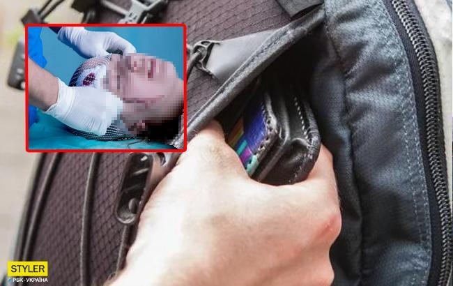 Проходил мимо: в Одессе пьяный мужчина жестоко избил подростка