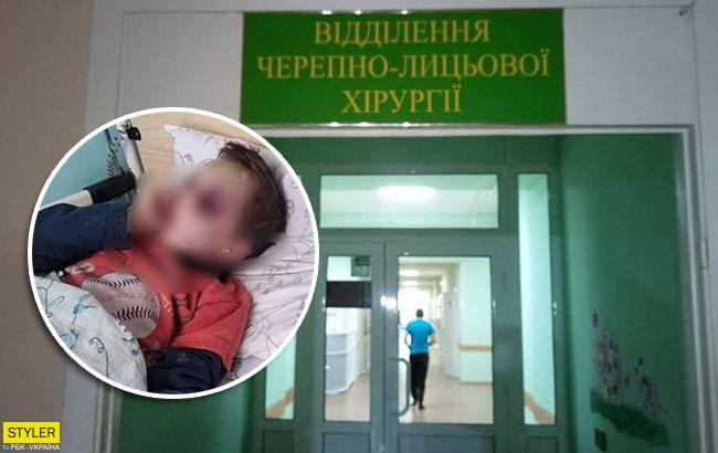 Голова в гематомах: у Вінницькій області побили шестирічну дитину