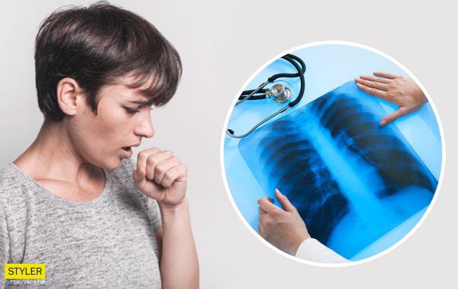 Замаскована пневмонія: як вчасно розпізнати симптоми