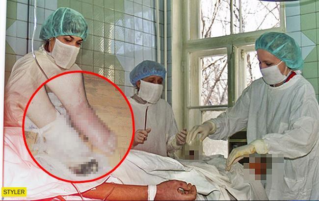 Пенсіонерці помилково лікарі ампутували здорову ногу
