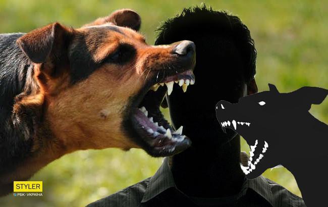 Під Києвом собака відгриз жінці кисті рук
