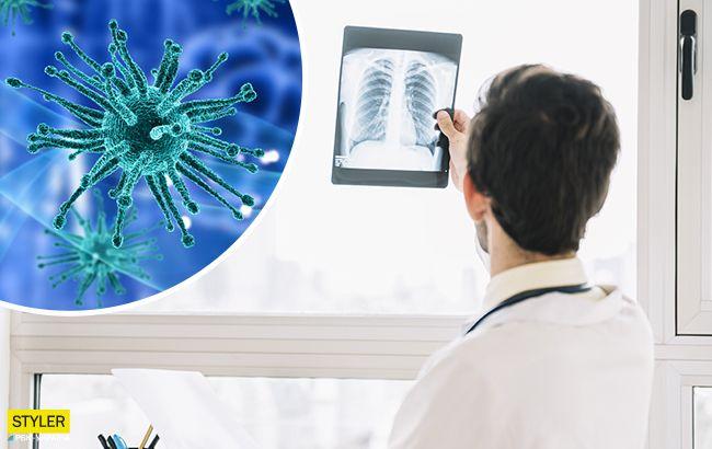Коронавирус прячется от рентгена: медики нашли объяснение