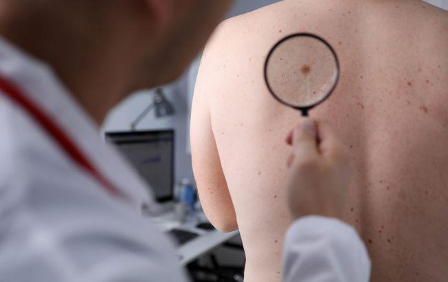 Врачи назвали ранние признаки рака кожи: не пропустите!