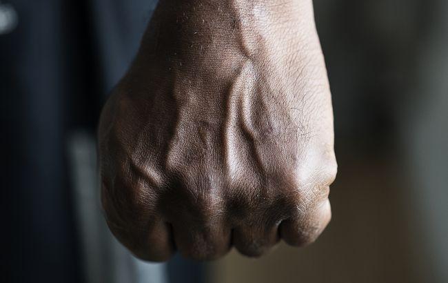 В Одесі банда підлітків жорстоко побила та пограбувала перехожого серед білого дня
