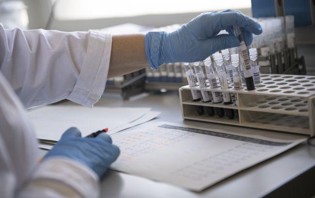 В Минздраве объяснили, почему не нужно делать тест на антитела после COVID-вакцинации