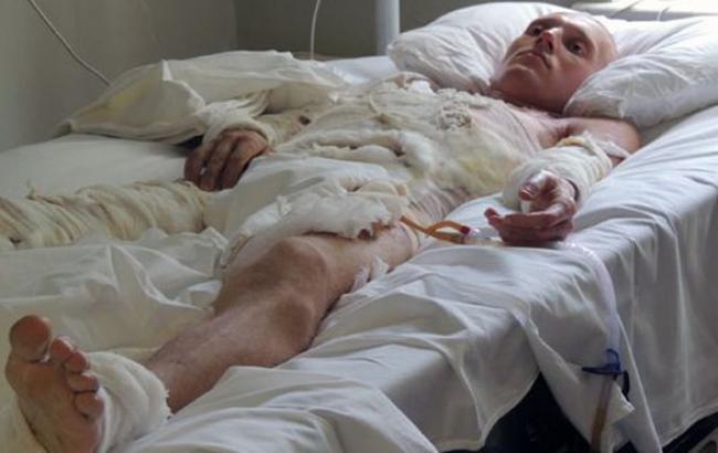 Фото: Пацієнт ожегового центру (facebook.com)