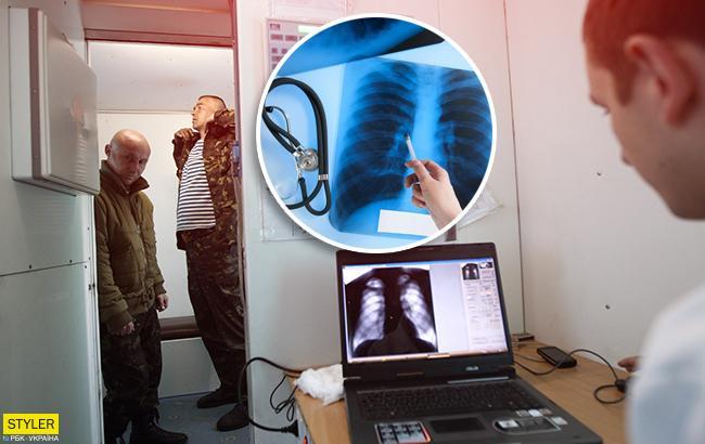Эпидемия туберкулеза: украинцам рассказали, как уберечься от заболевания